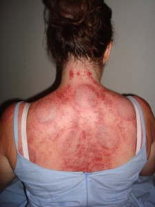 Gua Sha And Fire Cupping Occidentallyoriented